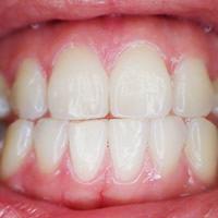 Wirkung der Munddusche auf das Zahnfleisch