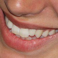 Die Geschichte der Munddusche