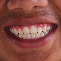 ratgeber-04-parodontitis