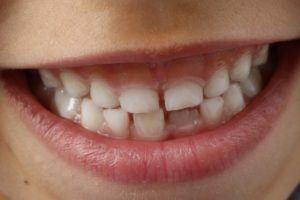 teeth-1743981_1280