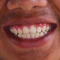 7 Tipps gegen Parodontitis