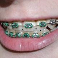 Munddusche bei Implantaten und Zahnspange anwenden?
