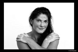 Interview über das Verein Deutscher Vitiligo-Bund