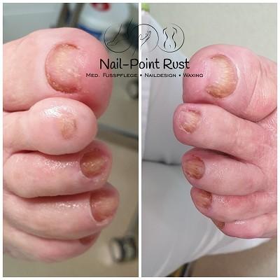 Nail-Point Rust Kosmetikstudio - Pediküre in Rust
